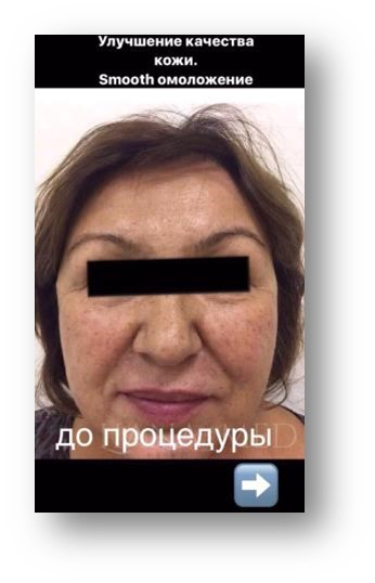 Военно медицинская академия санкт-петербург блефопластика платить медицинская справка купить с доставкой